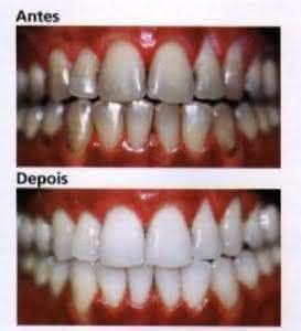 Limao Clareia Os Dentes Clareamento Dental Caseiro
