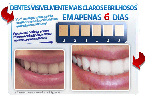 Tag Clareamento Dental Caseiro Preco