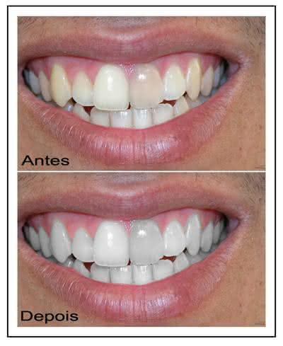 Qual O Melhor Tipo De Clareamento Dental Caseiro Clareamento Dental